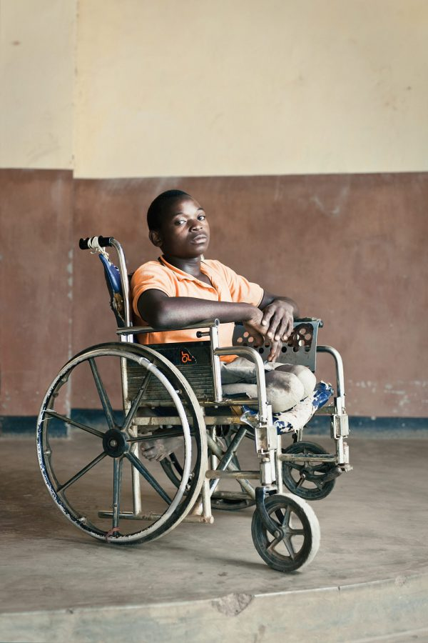editorial-photography-malawi-dawn-centre-disabled-boy