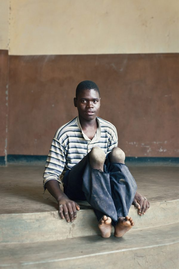 editorial-photography-malawi-dawn-centre-disability