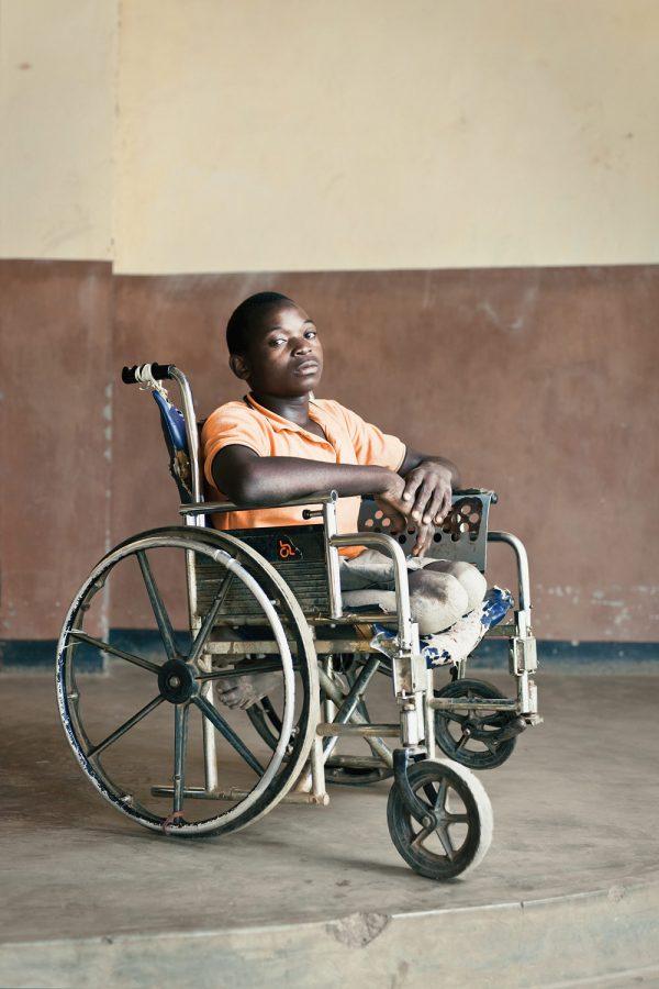 editorial-photography-malawi-dawn-centre-disabled-boy