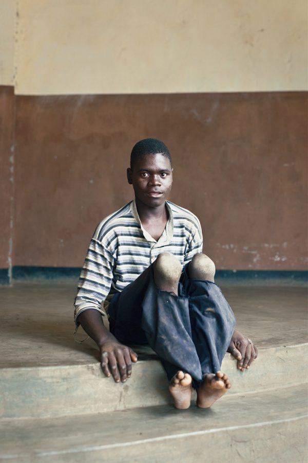 editorial-photography-malawi-dawn-centre-disability